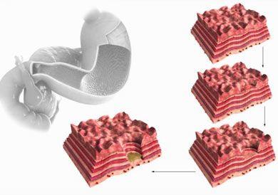 Симптоми і лікування виразки шлунка