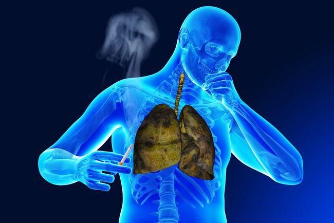 Легкі кинув палити
