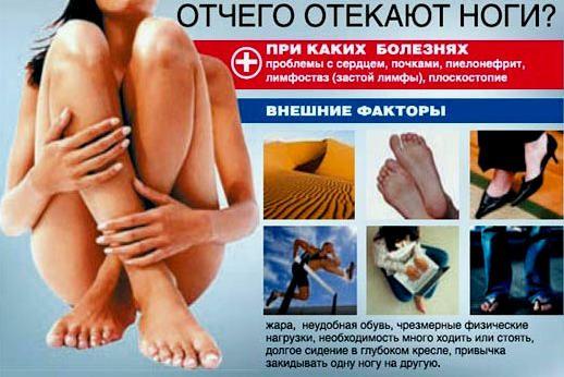 чому набрякають ноги