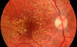 Причини сухої форми вмд - вікової макулярної дегенерації очей