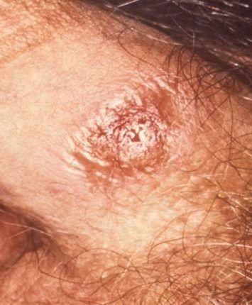 Сифіліс у чоловіків фото, симптоми, лікування